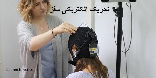 تحریک الکتریکی مغز
