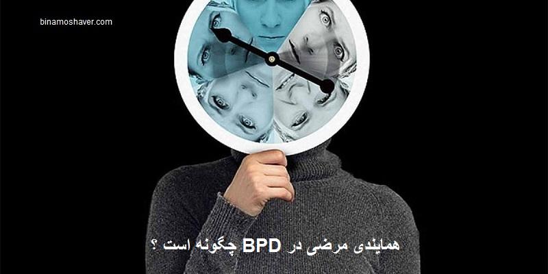 همایندی مرضی در BPD چگونه است؟